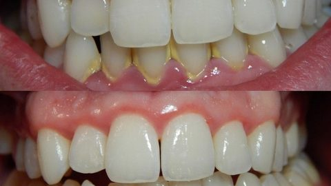 5 dấu hiệu viêm nha chu – Chớ coi thường kẻo mất răng