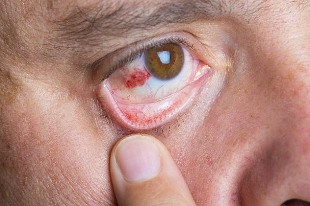 Đột quỵ mắt