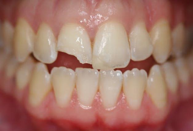 Với các trường hợp răng bị sứt, mẻ ở mức độ nhẹ có thể dùng các biện pháp phục hồi như hàn trám để khắc phục.