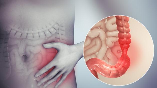 Hội chứng ruột kích thích tác động tiêu cực đến chất lượng cuộc sống của người bệnh