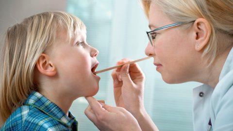 Khi nào nên tiến hành nạo VA cho trẻ?