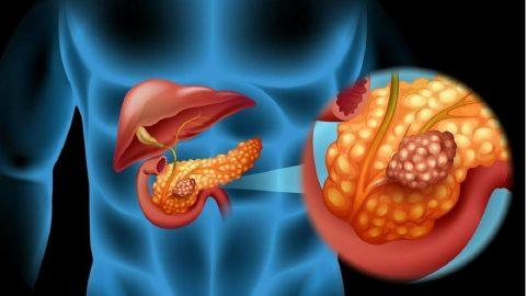 Làm gì để phòng và chữa ung thư tụy giai đoạn đầu?