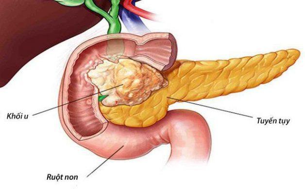 Làm thế nào để phát hiện điều trị ung thư tụy sớm?