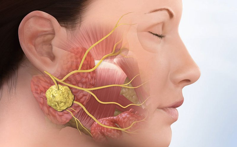 Các u nang hình thành khi răng khôn nằm ngang