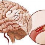 Đột quỵ nhồi máu não: Những điều không thể bỏ qua!