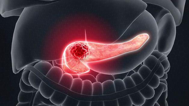 thông tin ung thư tuyến tụy giai đoạn cuối