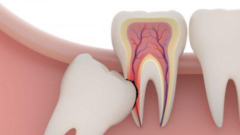 Những lưu ý khi nhổ răng số 8 để tránh biến chứng