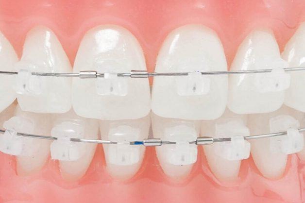 Thay vì dùng vật liệu kim loại, nha khoa hiện đại đã cải tiến và sử dụng sứ - vật liệu có màu tự nhiên và gần tương đồng với màu răng