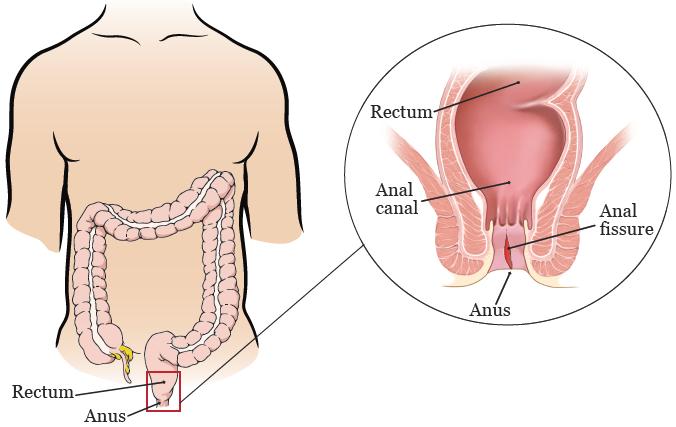 Bệnh nứt kẽ hậu môn gây đau dữ dội và chảy máu đỏ tươi trong và sau khi đi đại tiện