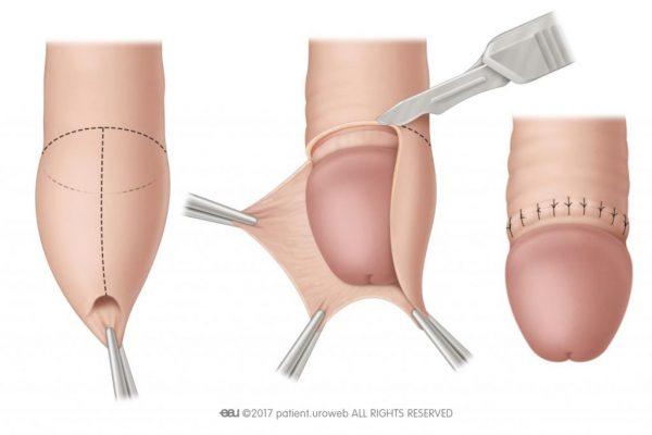 Quy trình phẫu thuật cắt bao quy đầu ở trẻ em