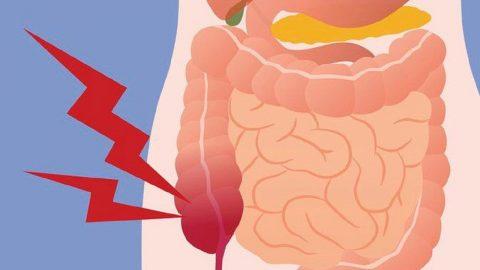 Phương pháp phẫu thuật cắt ruột thừa phổ biến hiện nay