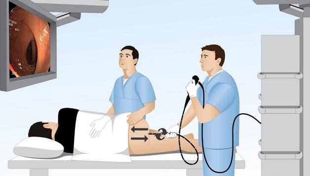 Nội soi trực tràng giúp bác sĩ phát hiện chính xác polyp trực tràng, đồng thời lấy mô sinh thiết để kiểm tra u lành tính hay ác tinh
