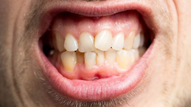 Răng mọc không đều là nguyên nhân gây nên bạch sản niêm mạc miệng