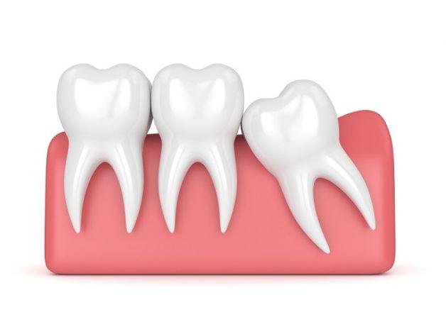 răng số 8 có nên nhổ không