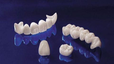 Răng sứ Cercon là gì? Có những ưu điểm nổi bật nào?