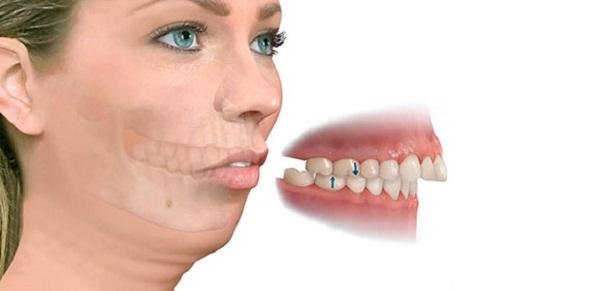 nẹp răng vẩu