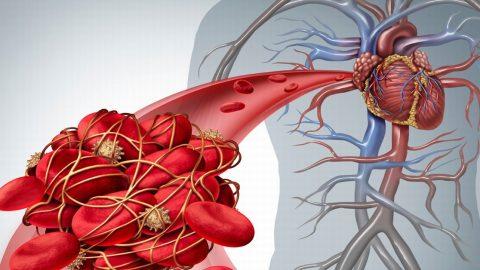 Tắc nghẽn mạch vành tim có nguy hiểm không?