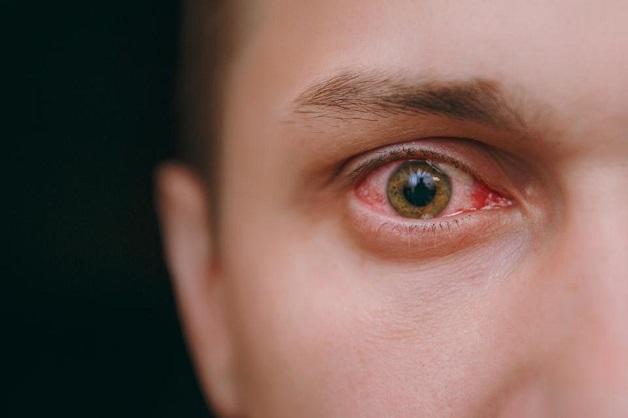 nguy cơ bị đột quỵ mắt