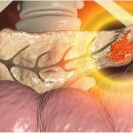 Tầm soát ung thư tụy được thực hiện như thế nào?
