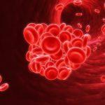 Thiếu máu bẩm sinh ở trẻ em có điều trị được không?