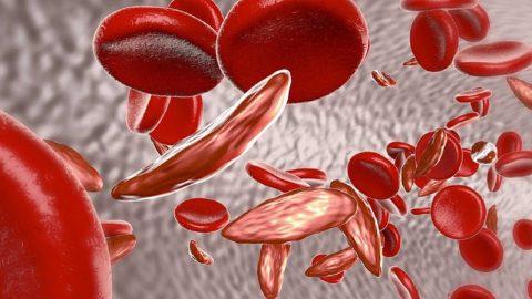 Tìm hiểu về thiếu máu di truyền ở trẻ em