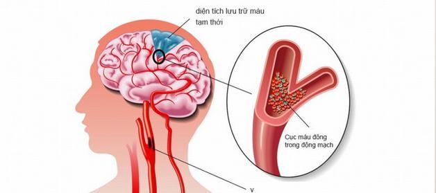 thiếu máu não là gì