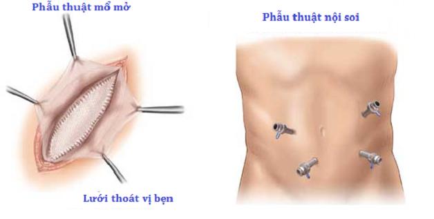 Hiện nay, phẫu thuật là phương pháp duy nhất để điều trị thoát vị bẹn ở trẻ.