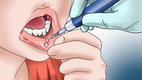 Tìm hiểu cách trị lở miệng nhanh khỏi và an toàn