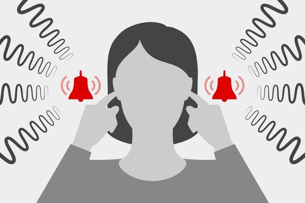 biểu hiện bệnh ù tai