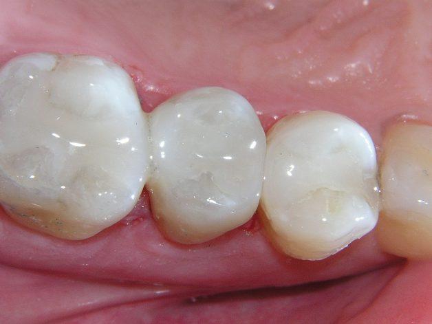Trám răng Composite là một trong những phương pháp được ưa chuộng nhất hiện nay, được áp dụng tại các cơ sở nha khoa uy tín