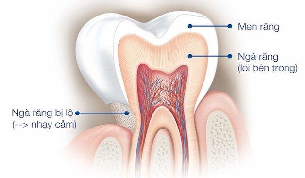 Răng nhạy cảm là cách gọi phổ biến của hiện tượng quá cảm ngà, hay còn gọi là triệu chứng ê buốt chân răng.