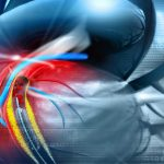 Triệu chứng mạch vành: 5 dấu hiệu sớm không nên bỏ qua