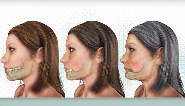 Biến dạng mặt do tiêu xương hàm