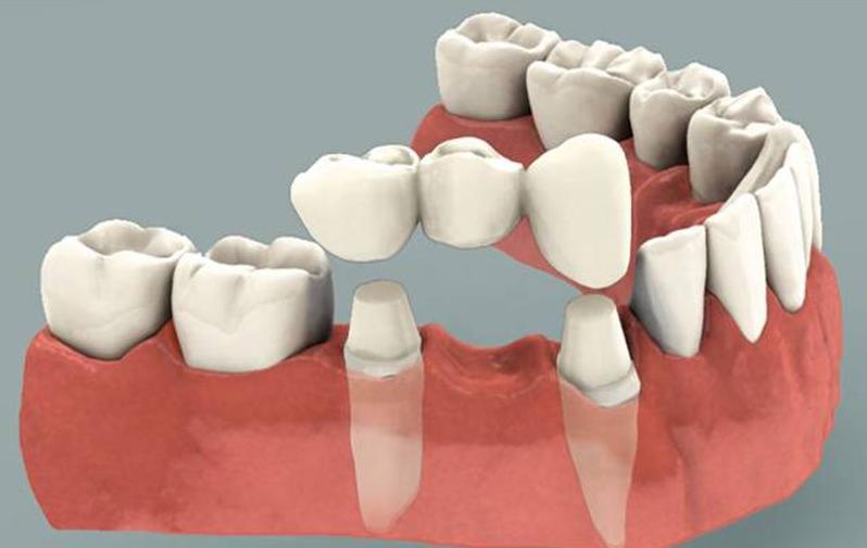 Mô phỏng phương pháp phục hình răng cố định