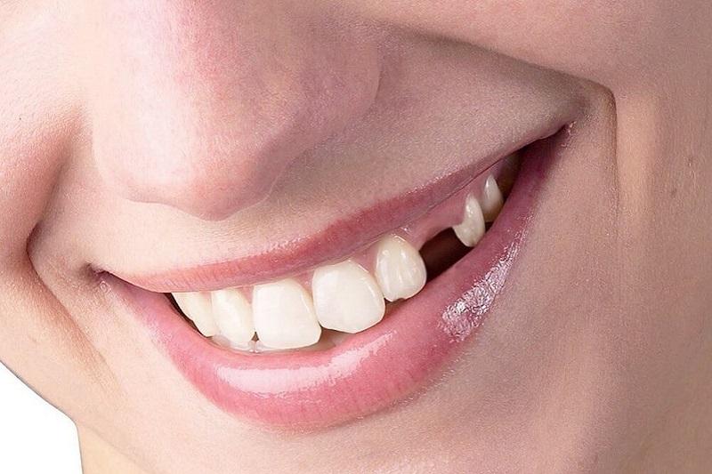 Trồng răng giả là phương pháp hiệu quả nhất cho người mất răng
