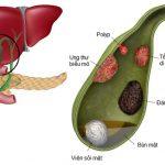Túi mật bị polyp: phân loại, triệu chứng và cách điều trị