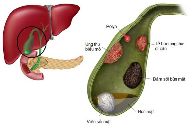 Túi mật có polyp có thể tiến tiển thành ung thư gây nguy hiểm đến tính mạng