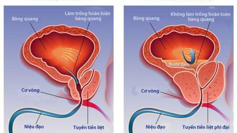 U xơ tiền liệt tuyến là cái gì? Nguyên nhân và phương pháp điều trị