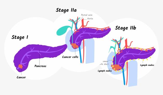 ung thư tụy giai đoạn 2