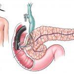 Người mắc ung thư tụy kiêng ăn gì?