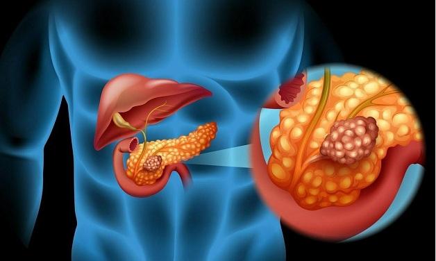 Người mắc ung thư tụy nên kiêng ăn gì