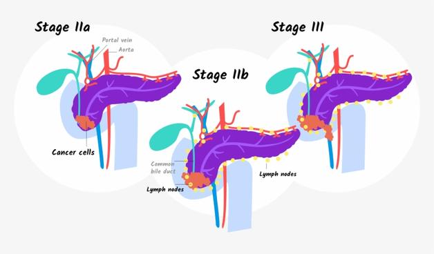 ung thư tuyến tụy giai đoạn 3