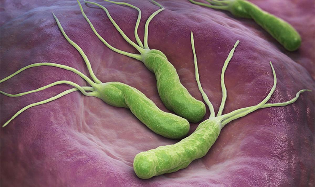 Vi khuẩn HP triệu chứng, nguyên do và cách điều trị hiệu quả