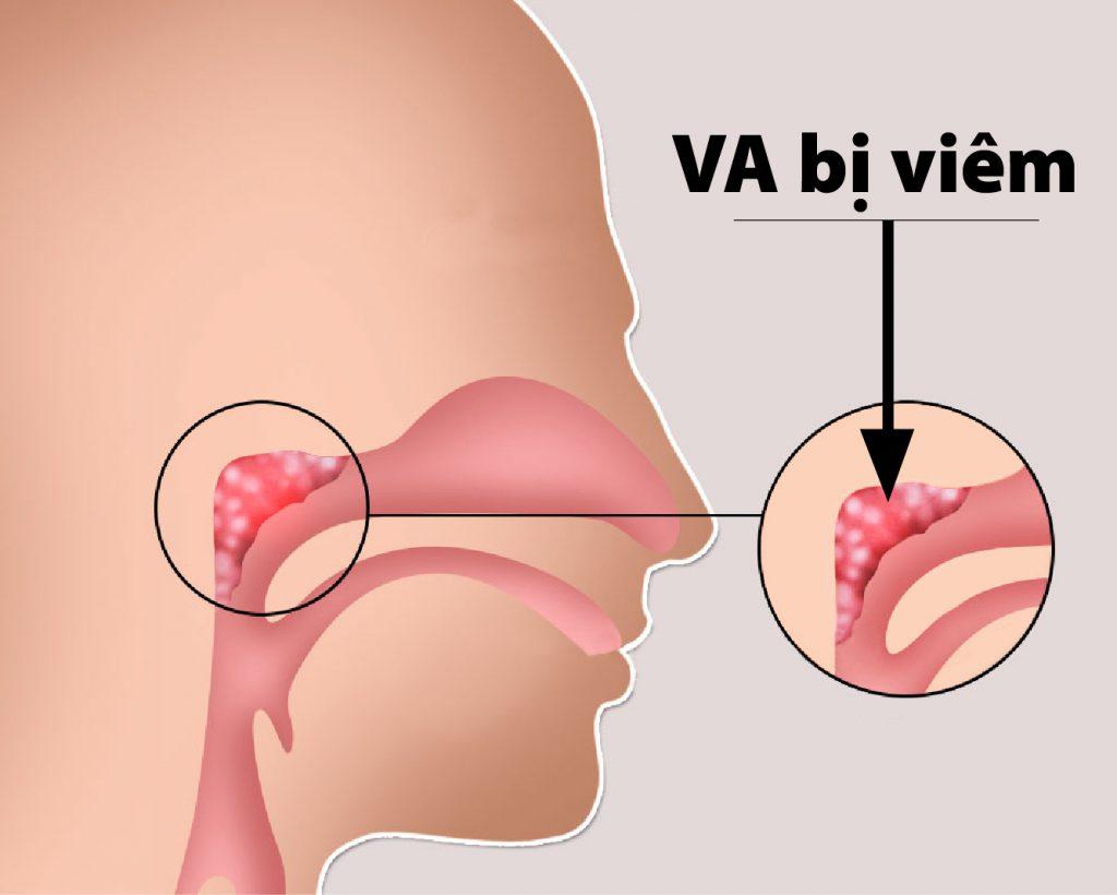 Hình ảnh minh họa viêm VA