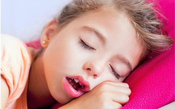 Viêm VA độ 3 khiến trẻ thở bằng miệng nhiều hơn