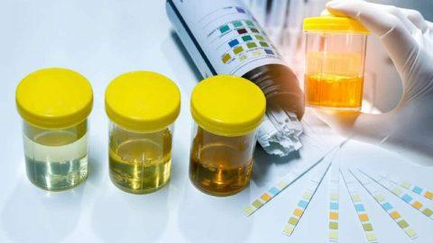 Viêm đường tiết niệu cần xét nghiệm gì?
