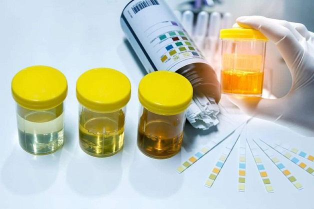Trả lời câu hỏi viêm đường tiết niệu cần xét nghiệm gì.