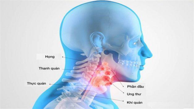 Viêm họng nổi hạch nên làm gì để hết triệu chứng