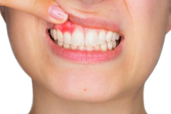 Vi khuẩn tích tụ trong cao răng sẽ gây hại cho men răng và nướu, gây viêm nha chu