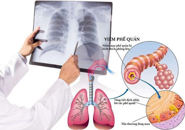 Viêm phế quản ở trẻ nhỏ là hiện tượng đường thở dưới bị vi khuẩn tấn công gây viêm nhiễm.